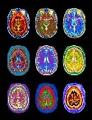 IRM.cerveau
