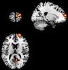 Cortex-prefrontal